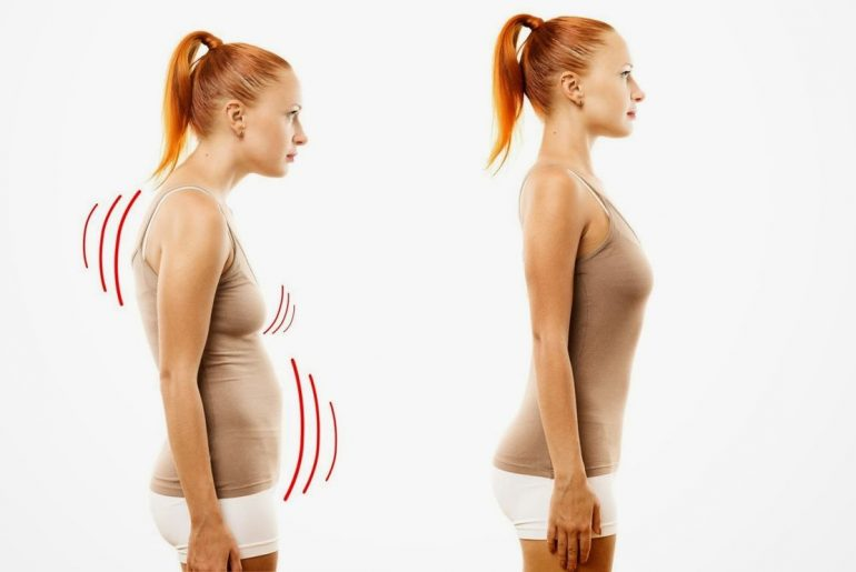 Exercises for posture: prevention and treatment.